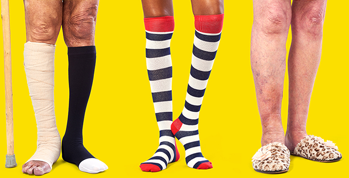 Three different legs for the Legs Matter Campaign