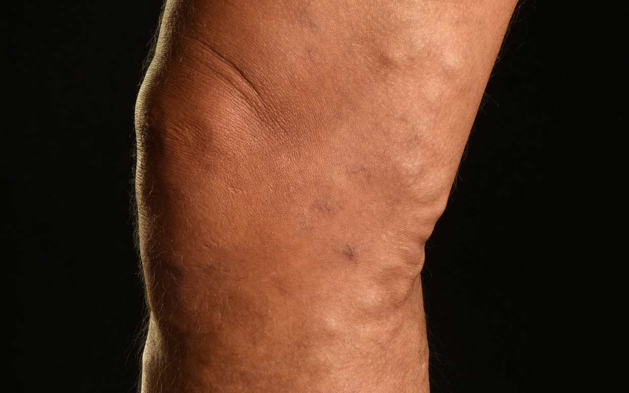 An image of varicose veins around a person's knee - Legs Matter