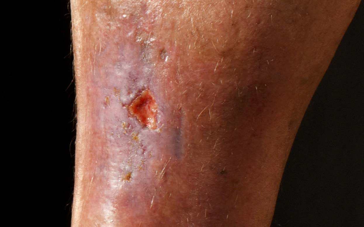 a image of venous leg ulcers or sore, after knock - Legs Matter