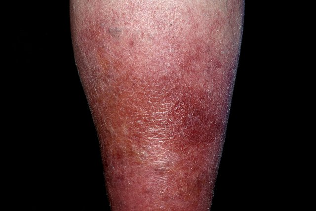 Image of Cellulitis on the leg
