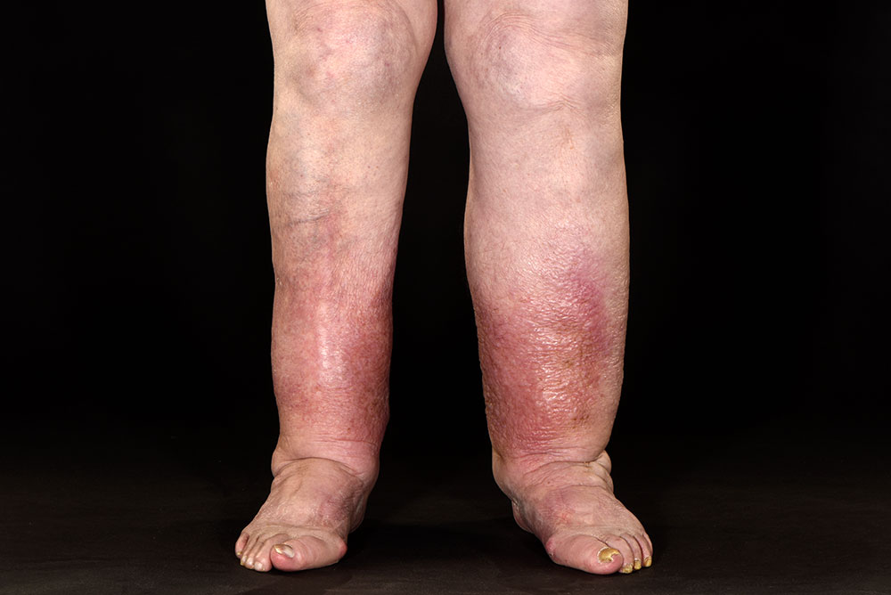 and image of chronic oedema