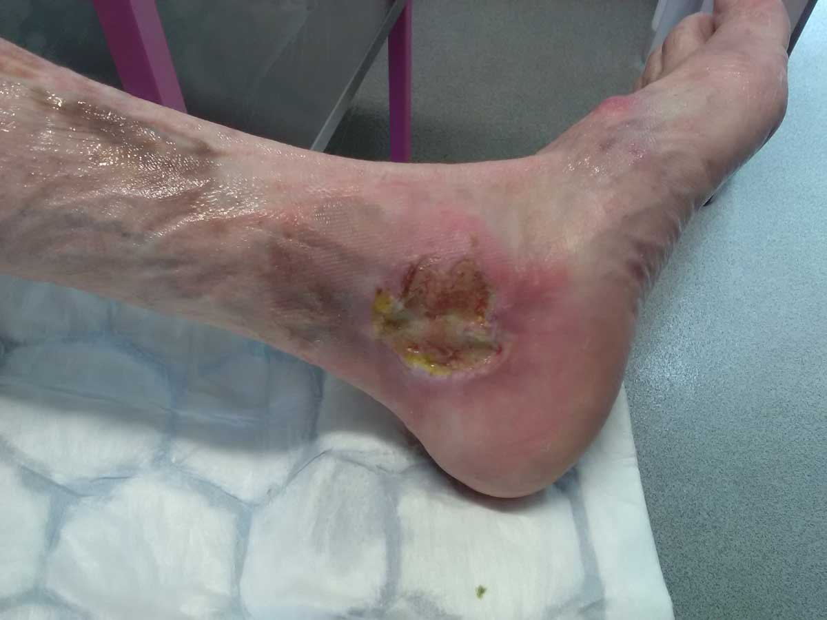 What does Pyoderma Gangrenosum looks like? And image of Pyoderma Gangrenosum on a leg