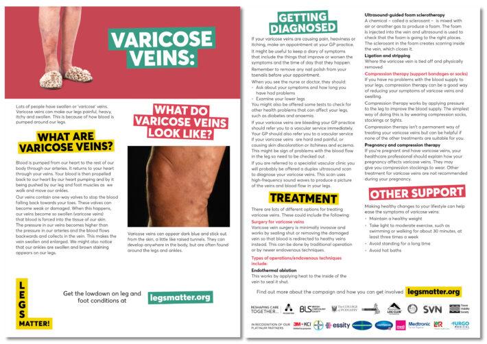 tratamentul venelor varicoase reticulinare varicose lotion